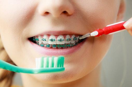 เลือกยาสีฟันที่ทำให้ฟันขาวสูตรเฉพาะสำหรับคนจัดฟัน