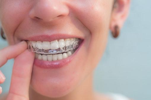 การจัดฟันแบบใส (Invisalign) คืออะไร ?